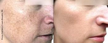 The Photo Facial BBL Procedure