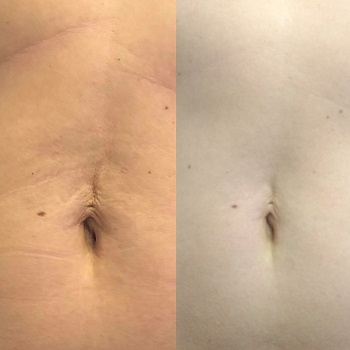 Allure Laser Med Spa - 50% Ten Week & Toned Package