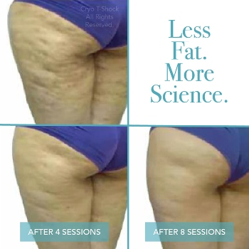 One Cryo T Shock- Slimming, Toning or Fat Loss Session