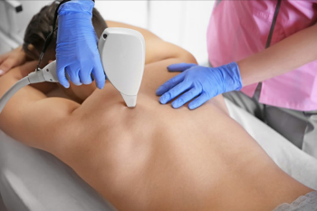 Christina Clinic-Laser Hair Removal-Full back-Package of 5 treatments