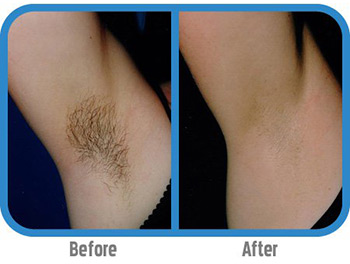 Spa Medique - IPL/ BBL Hair Removal